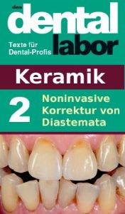 Baixar Noninvasive Korrektur von Diastemata (das dental labor Fachtexte 8) (German Edition) pdf, epub, eBook