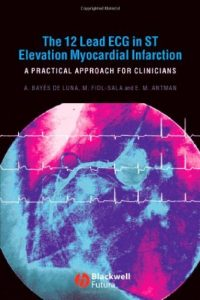 Baixar The 12 Lead ECG in ST Elevation Myocardial Infarction: A Practical Approcah for Clinicians pdf, epub, eBook